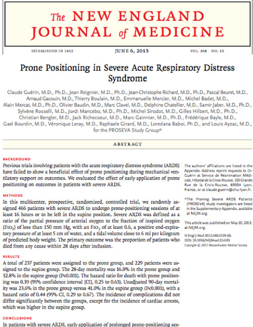 Prone Positioning in Severe Acute Respiratory Distress Syndrome - 2013